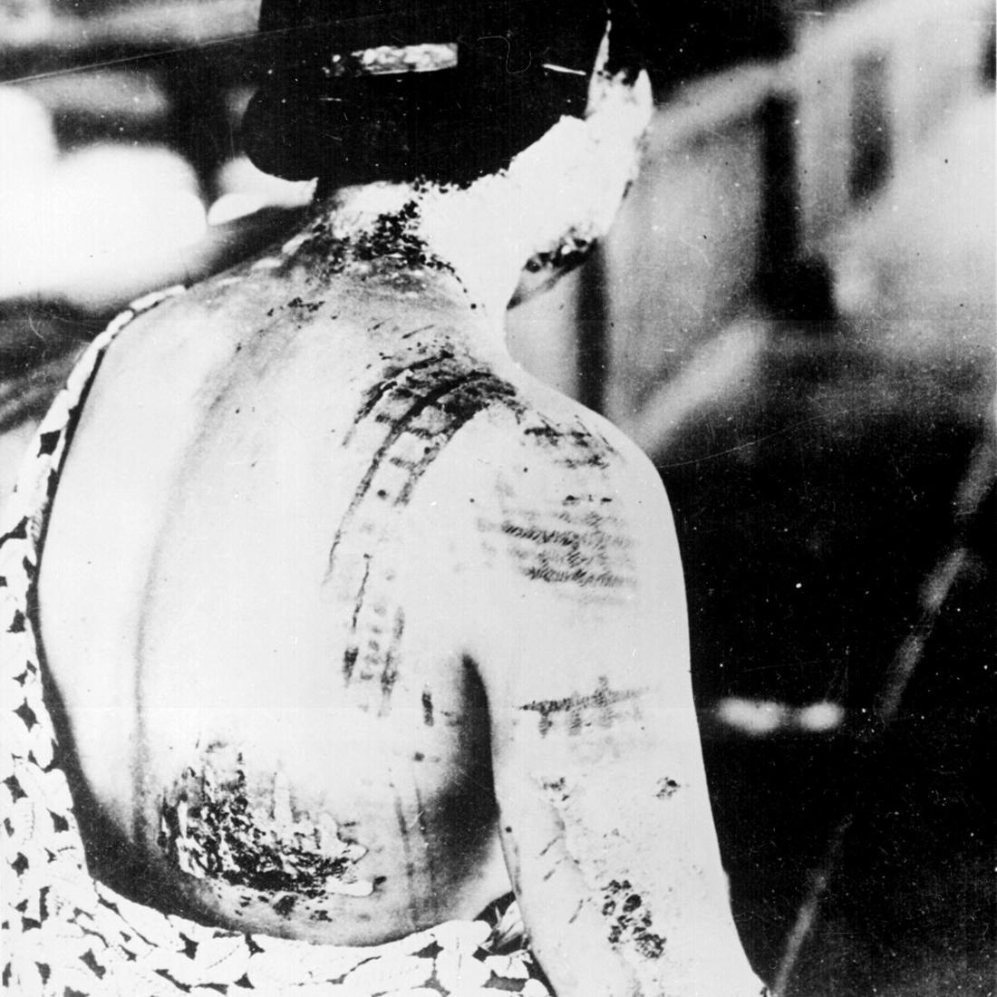 хиросима и нагасаки тени людей фото галереи постоянно совершенствуют